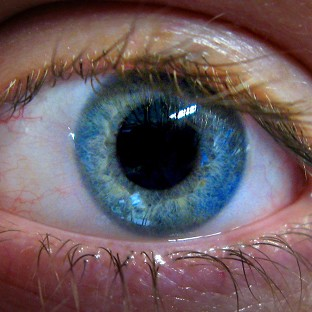 The new low-cost adaptors will allow anyone with minimal training to picture the eye and share the images with experts