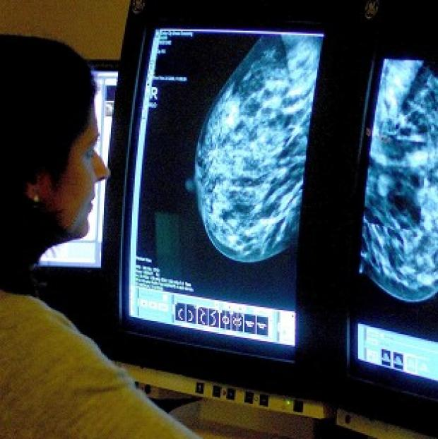 Preston and Leyland Citizen: Many women having mastectomies would have been better treated with a lumpectomy, say researchers