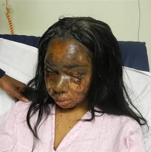 Naomi Oni, who was scarred for life in an acid attack, has accused police of incompetence over the investigation (Met Police)