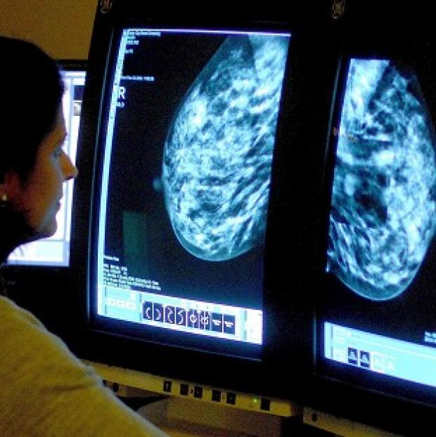 Preston and Leyland Citizen: Treatment of breast cancer must also involve women being given information on fertility, a charity said